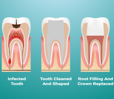 Root Canal Treatment in Westerville, OH - Westar Dental